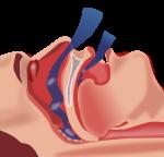 Синдром обструктивного апноэ/гипопноэ сна и его лечение